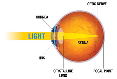 How the eye works nkcf light rays enter the eye at different angles and do not focus on one point the retina but on many different points causing a blurred distorted image ccuart Choice Image