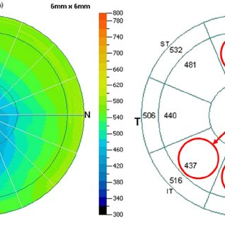 Optical-coherence-tomography-corneal-pachymetry-map-of-a-keratoconus-subject-showing_Q320